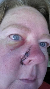 Three days post plastic surgery to close wounds.